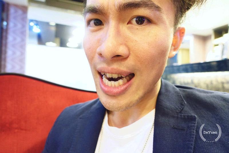 隱形牙套 SOV舒服美