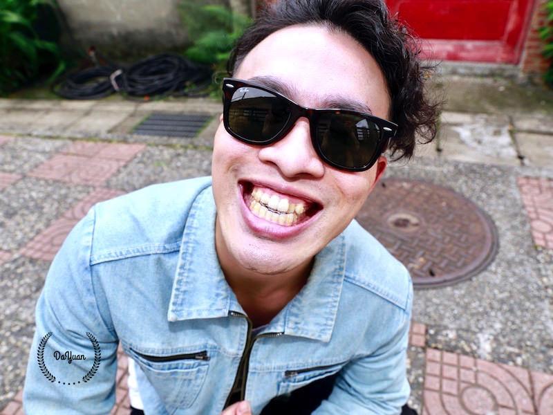 [牙齒矯正] SOV舒服美 關於隱形牙套,你可能想知道的事(4)