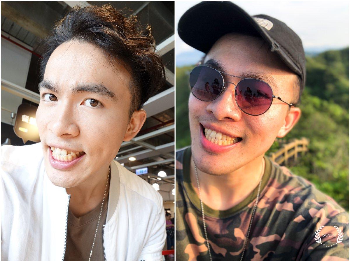 牙齒矯正|SOV舒服美 關於隱形牙套,你可能想知道的事(5)