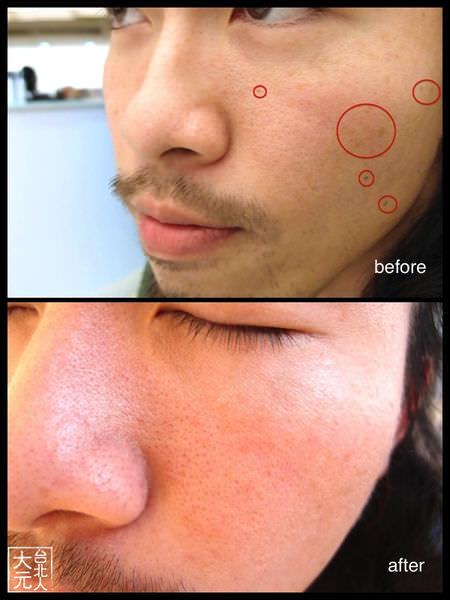 醫美 第一次打淨膚雷射經驗分享