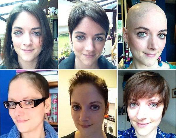 外國正妹做化療頭髮脫落&重新生長的過程